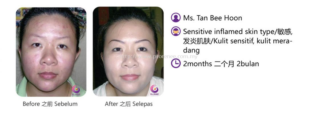 ProRenee Testimonial-Sensitive inflamed skin