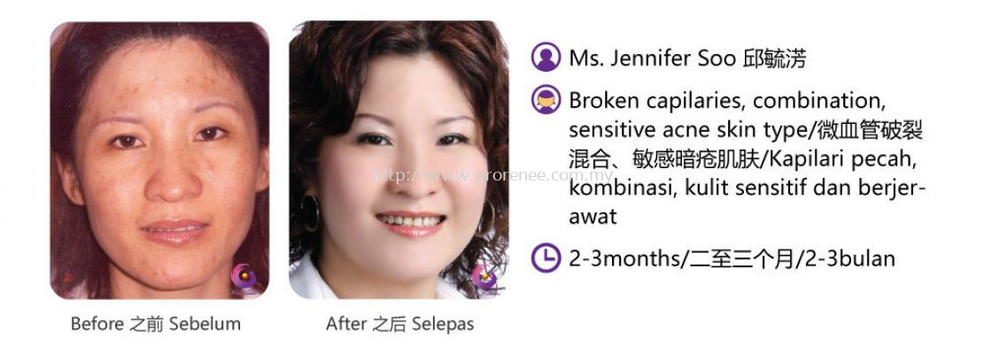 ProRenee Testimonial-Broken capilaries sensitive skin