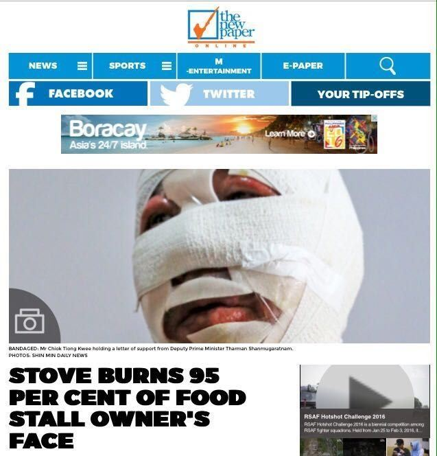STOVE BURNS STALL OWNER'S FACE (7/2/16)