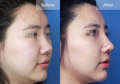 综合鼻整术