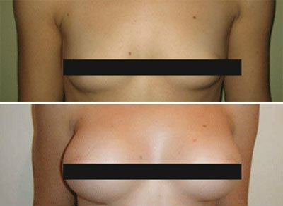 Breast Enlargement / Augmentation