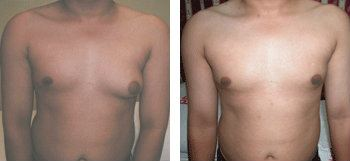 Breast Reduction for Man (Gynecomastia Correction)