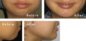 Chin / Cheek / Jaw Contouring Chin / Cheek / Jaw Contouring Surgery, Centre, Clinic,   ~ Nicanor Plastic & Cosmetic Surgery