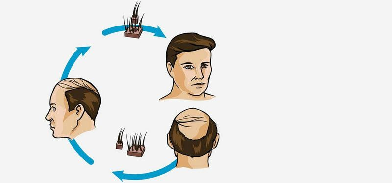 Hair Transplant Hair Transplant Surgery, Centre, Clinic,   ~ Nicanor Plastic & Cosmetic Surgery
