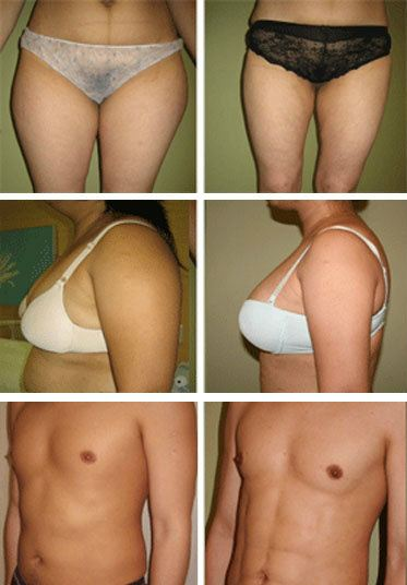 Liposuction / Liposelection® Liposuction / Liposelection Surgery, Centre, Clinic,   ~ Nicanor Plastic & Cosmetic Surgery