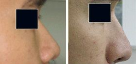 Nose Surgery (Rhinoplasty) Nose Surgery (Rhinoplasty) Surgery, Centre, Clinic,   ~ Nicanor Plastic & Cosmetic Surgery