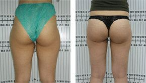 Buttock Lift / Augmentation