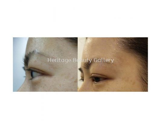 Heritage's Signature Eye Treatment