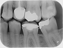 Periapical or Bitewing (Per Exposure)