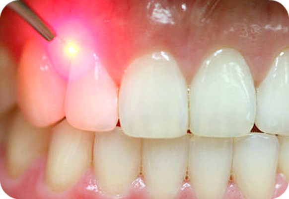 Gingivectomy (Intermediate)