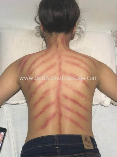 Gua Sha Treatment - Testimonial