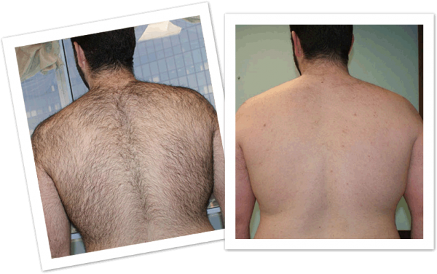 Permanent Full Back Hair Laser Removal Treatment : ÓÀ¾Ã±ùµã¼¤¹âºó±³³ýÃ«ÁƳÌ