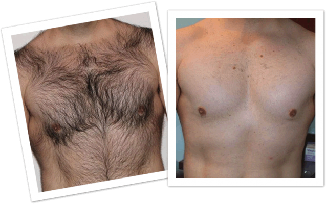 Permanent Chest Hair Laser Removal Treatment : ÓÀ¾Ã±ùµã¼¤¹âÐز¿³ýÃ«ÁƳÌ