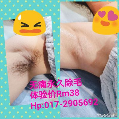 OPT Cold Laser Permanent Hair Removal