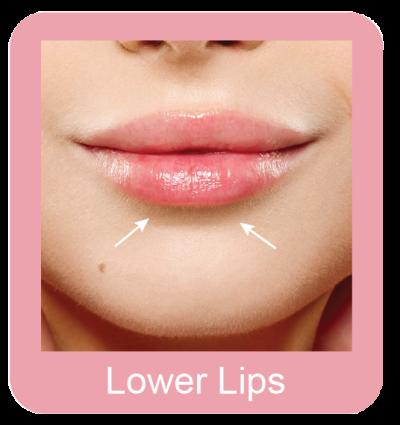 Lower Lips
