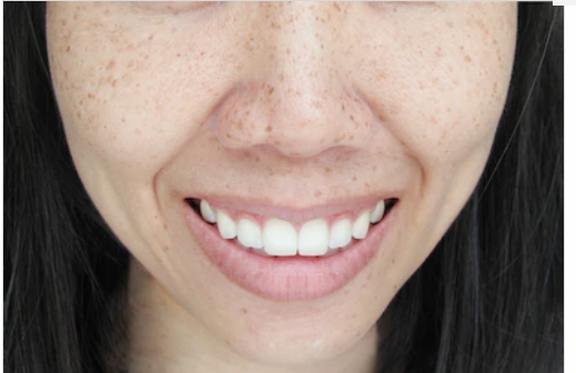 What is the difference between freckles and Melasma?