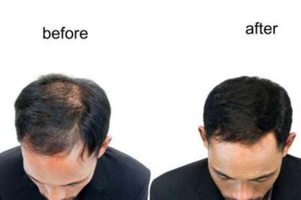Hair PRP