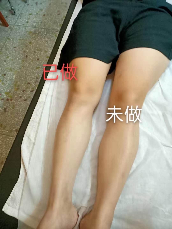 瘦腿 之前之後