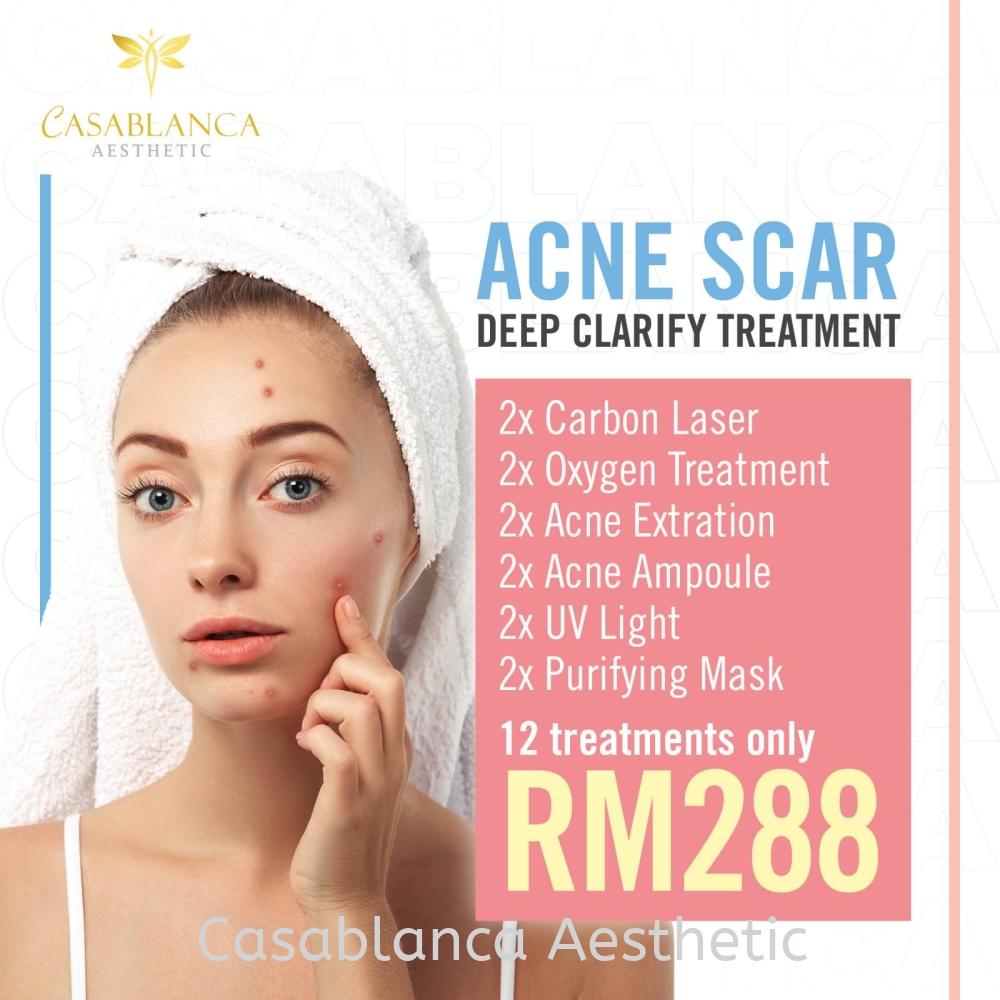 Acne Scar Facial