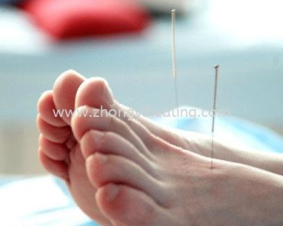 ÊÝÍÈ Õë¾ÄÖβ¡ Acupuncture Treatment  Kuala Lumpur, KL, Cheras, Selangor, Malaysia. Traditional Chinese Medicine, Acupuncture, Joint Pain, Arthritis, Arthralgia, Slimming, Period Pain | Yik Shou Enterprise