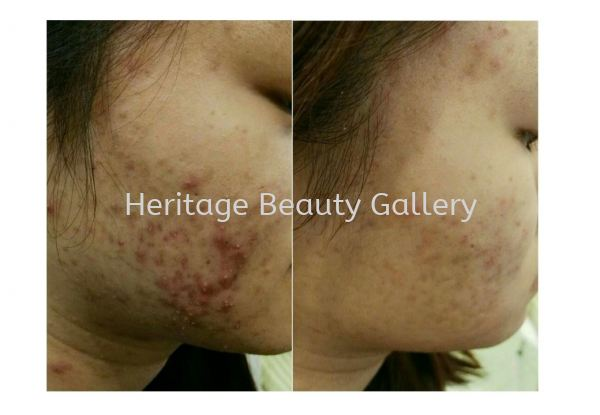 Heritage's Signature Acne + Scar Recovery Treatment Heritage's Signature Treatment Face Treatment & Therapy 然何擦尖 Penang, Malaysia, Butterworth Services, Treatments, Therapy | Heritage Beauty Gallery