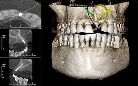 CBCT (per exposure) Radiographic Image Selangor, Ampang, Malaysia, Kuala Lumpur (KL) Treatment, Therapy, Specialist, Clinic | My Dentist