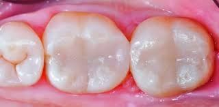 Posterior Composite (Simple) Tooth Coloured Restoration Restorations Selangor, Ampang, Malaysia, Kuala Lumpur (KL) Treatment, Therapy, Specialist, Clinic | My Dentist