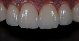 Ceramic Veneer Veneer Fixed Prosthesis  Selangor, Ampang, Malaysia, Kuala Lumpur (KL) Treatment, Therapy, Specialist, Clinic | My Dentist