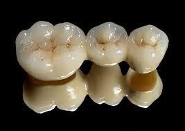 Full Ceramic Bridge Bridge Fixed Prosthesis  Selangor, Ampang, Malaysia, Kuala Lumpur (KL) Treatment, Therapy, Specialist, Clinic | My Dentist