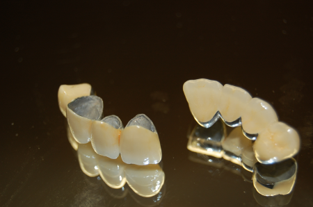 Porcelain Fused Metal Bridge Fixed Prosthesis  Selangor, Ampang, Malaysia, Kuala Lumpur (KL) Treatment, Therapy, Specialist, Clinic | My Dentist