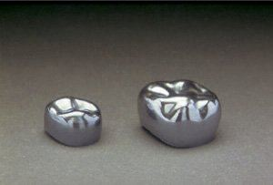 Stainless Steel Crown (Paedodontic) Stainless Steel Crown (Paedodontic) Fixed Prosthesis  Selangor, Ampang, Malaysia, Kuala Lumpur (KL) Treatment, Therapy, Specialist, Clinic | My Dentist