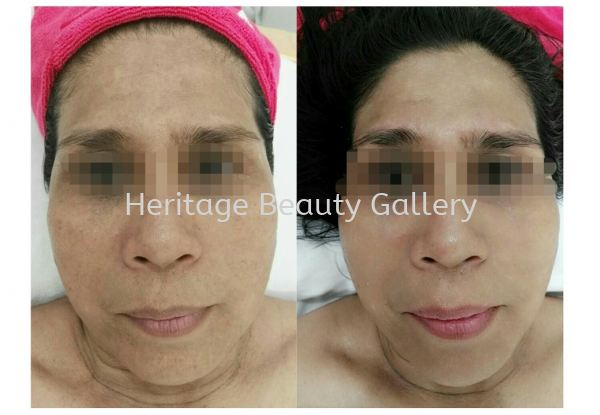 Heritage's Signature Lifting + Brightening treatment Heritage's Signature Treatment Face Treatment & Therapy 然何擦尖 Penang, Malaysia, Butterworth Services, Treatments, Therapy | Heritage Beauty Gallery
