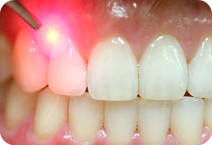 Gingivectomy (Simple) Laser Selangor, Ampang, Malaysia, Kuala Lumpur (KL) Treatment, Therapy, Specialist, Clinic | My Dentist