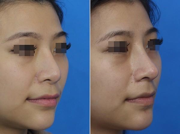 鼻子重修术 鼻部 脸部整形 雪兰莪,马来西亚,吉隆坡,蒲种 服务,诊所   M - Aesthetic