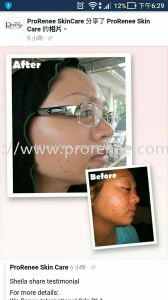 Testimonial by HaLa Product