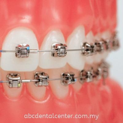 Damon braces ����