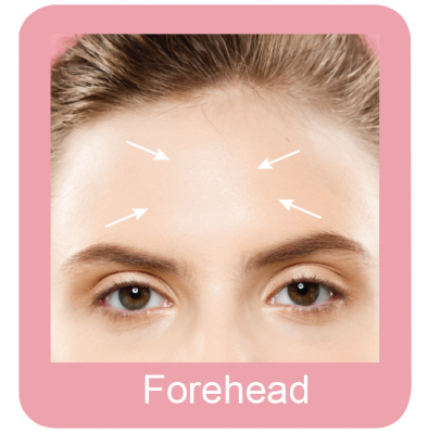 Permanent hair removal forehead