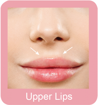 Permanent hair removal upper lips