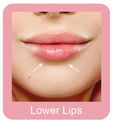 Permanent hair removal lower lips
