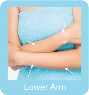 lower arm Hair Removal Medium Area Permanent Hair Removal Selangor, Malaysia, Kuala Lumpur (KL), Subang Jaya, Mid Valley City Hair Removal Treatment | Hairy Mary