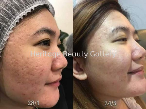 Skin Care class ÃÀÈÝ¿Î Penang, Malaysia, Butterworth Services, Treatments, Therapy | Heritage Beauty Gallery
