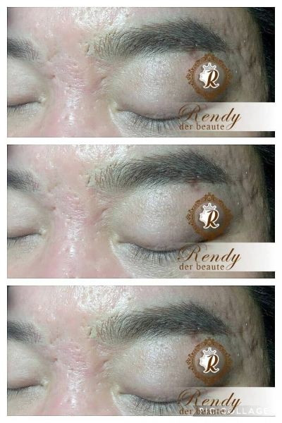Man Eyebrow -6D Microblading (6D�訳槻平端) Eyebrow Embroidery Embroidery Services Penang, Malaysia, George Town Service, Supplier, Supply, Supplies | Amaze Beauty Salon