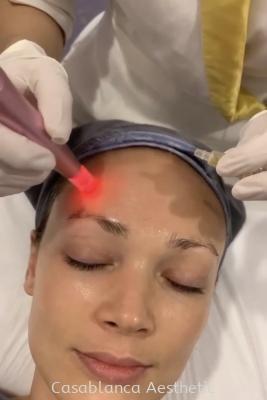 Platelet Rich Plasma (PRP) Facial