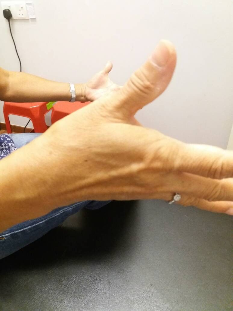 before treatment, unable to extend the thumb